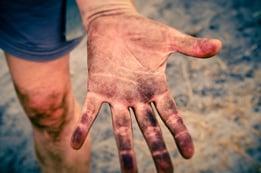 dirty-hand