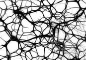 neurons-autism.jpg